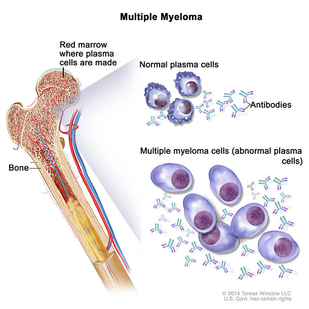 Multiple myeloma drawing shows normal plasma cells, multiple myeloma cells (abnormal plasma cells), and antibodies. Also shown is red marrow inside bone, where plasma cells are made.