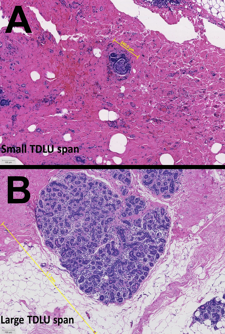 H&E images from patients with (A) luminal A and (B) triple negative breast cancer.  In the images above, the normal tissue adjacent to a triple negative tumor (B) shows a larger TDLU, and therefore reduced involution, compared to the smaller TDLU in normal tissue adjacent to a luminal A tumor (A).