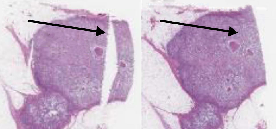 Before and after slides of stained slide of breast tumor tissue showing the repair of a tear in the original sample.