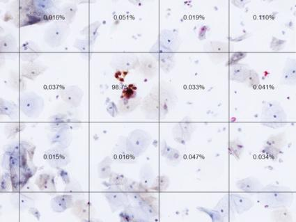 A slide from an automated dual-stain cytology test.